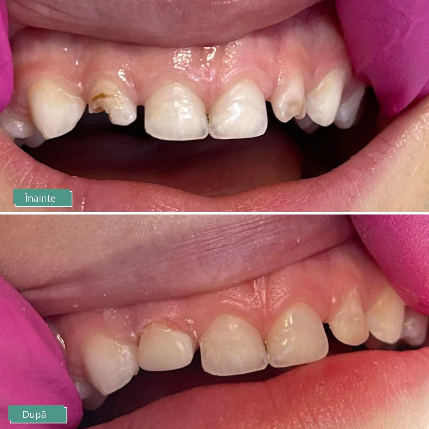 demineralizare dinti copii mici