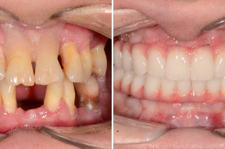 implant dentar rapid