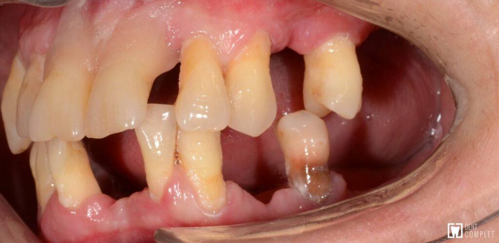 parodontoza si implanturi