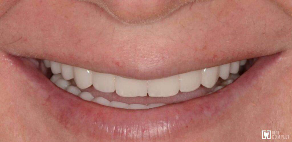 tratament boala parodontala